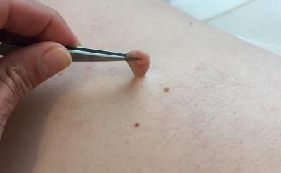 a skin tag before treatment