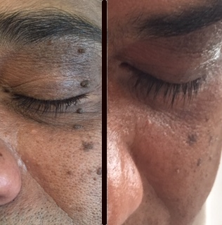 dermatosis nigra before and after treatment